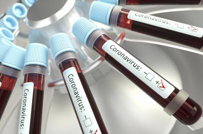 11 إصابة جديدة بفيروس