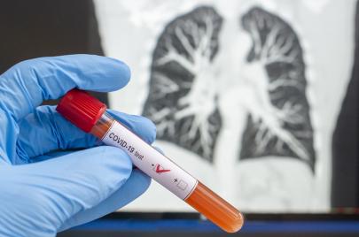 5 إصابات جديدة بفيروس كورونا
